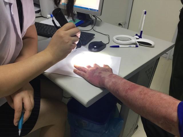 BS Huyền Trang khám cho bệnh nhân N.T.T mắc bệnh vảy nến. Ảnh: V.Thu