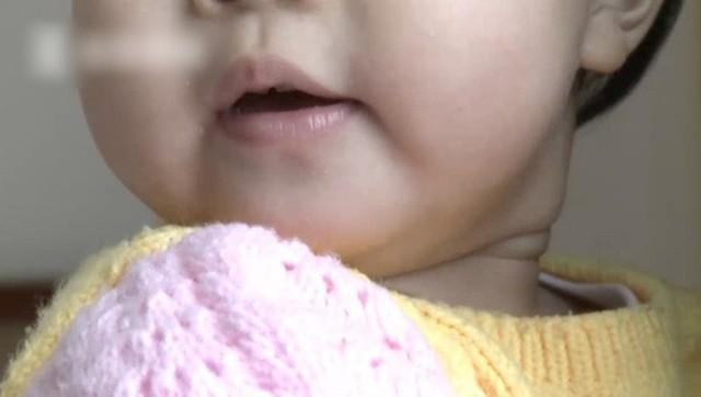 Cô bé 1 tuổi bất ngờ cảm thấy buồn nôn, khó chịu sau khi vào phòng khách sạn.
