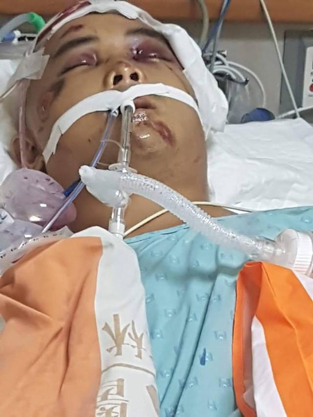 Anh Sơn đang nằm hôn mê sâu bên bệnh viện ở Đài Loan