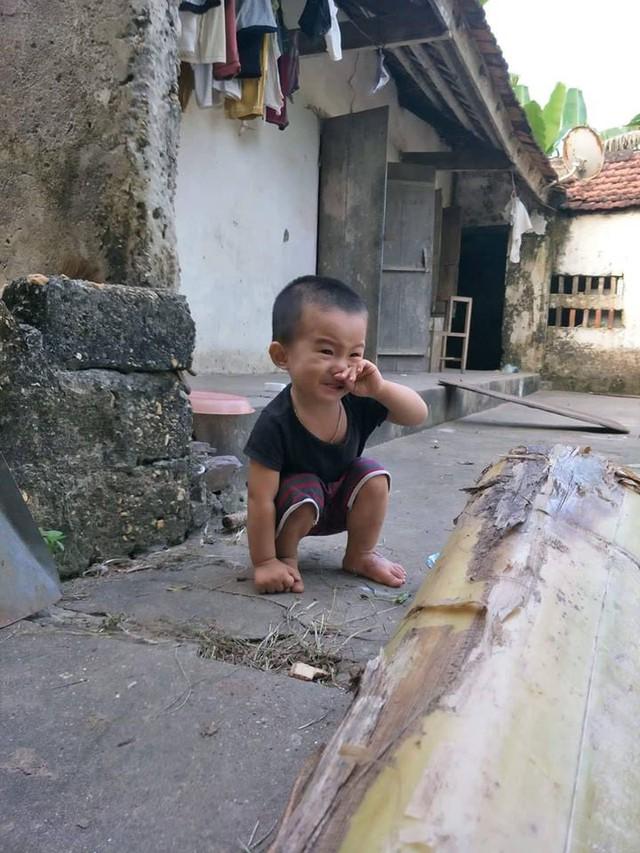 Con trai anh Sơn sau bỏng vẫn bị di chứng