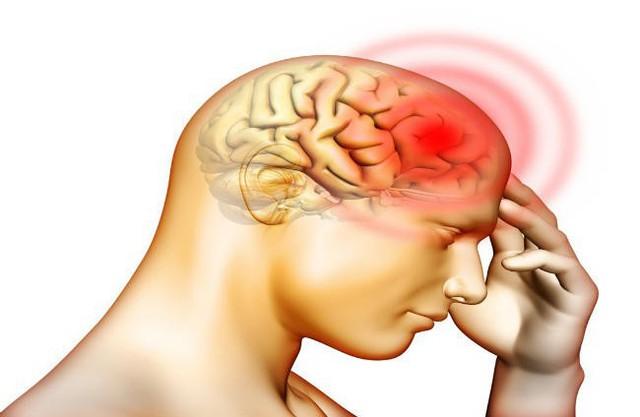 Bác sĩ chẩn đoán ông Vương bị xuất huyết não và lượng máu chảy đạt đến 90ml, rất nguy hiểm đến tính mạng.