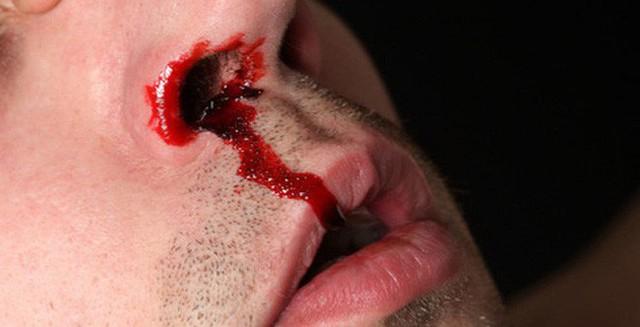 Thường xuyên chảy máu cam là dấu hiệu của xuất huyết não.