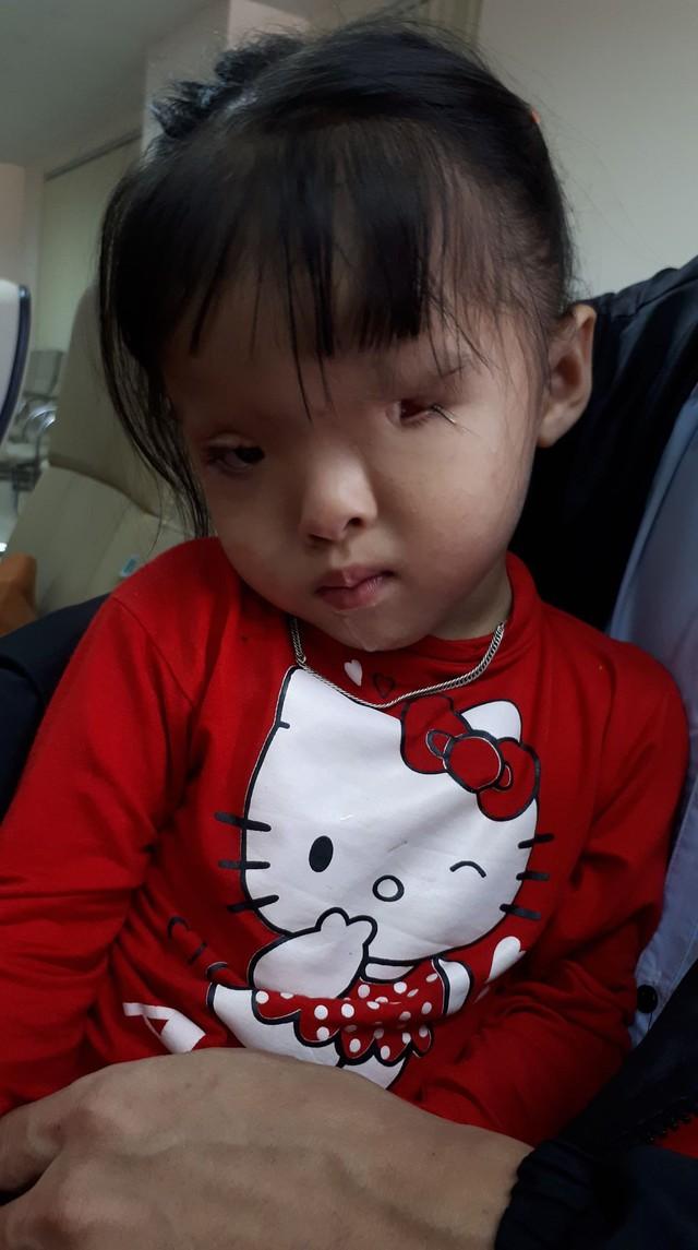 Đôi mắt dị tật của bé Hân cần phải phẫu thuật nhiều lần nữa mới mong tìm được ánh sáng. Ảnh PT