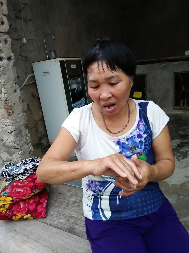 Bà Q. vẫn chưa hết bàng hoàng khi nhớ lại trận mưa dao của người hàng xóm. Ảnh: NH
