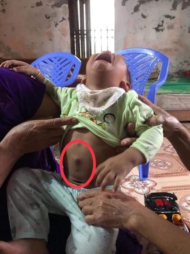 Cháu Thiên đã phẫu thuật 1 lần bởi căn bệnh u đầu tụy. Ảnh Mai Lan