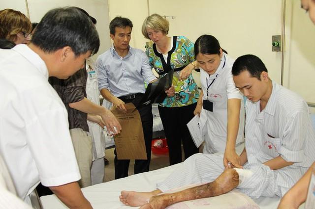 Một bệnh nhân teo cơ, liệt chân vì căn bệnh hoàng gia hemophilia.