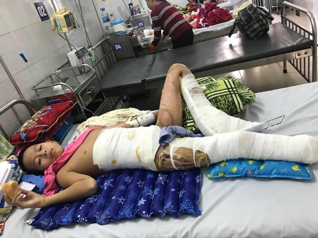Bé Phi đã trải qua 5 lần phẫu thuật, cắt mất bên chân phải và chân trái nguy cơ cắt tiếp do bỏng điện cao thế. Ảnh BSCC