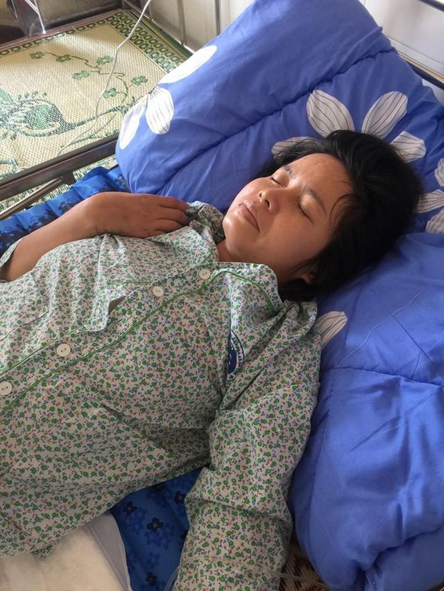 Gia cảnh nghèo khó và không vay mượn được tiền để chữa trị sớm nên vết bỏng của chị Lan đã biến chứng. Ảnh TG