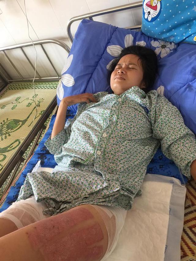 Chị Lan đã phải chịu nhiều đau đớn vì nhiều đợt phẫu thuật. Ảnh TG