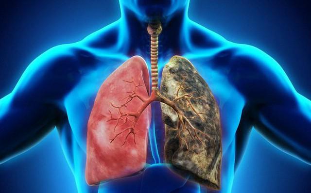 Có 7,2% tỉ lệ bệnh nhân phát sinh đau vai khi bị ung thư phổi