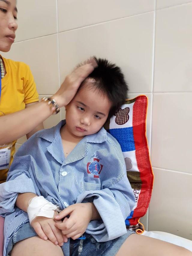 Mắt của bé Duyên đang mờ dần vì căn bệnh u não. Ảnh PT