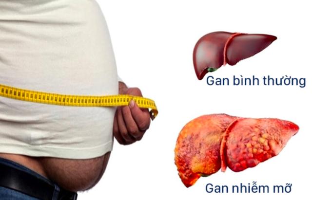 Theo các chuyên gia y tế, nguyên nhân hàng đầu gây bệnh gan nhiễm mỡ là do uống rượu bia nhiều. Ảnh: TL