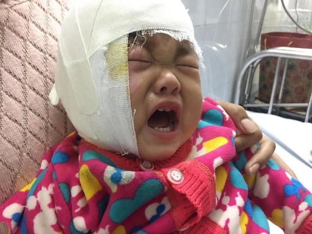Vì đau, cô bé khóc suốt ngày đêm