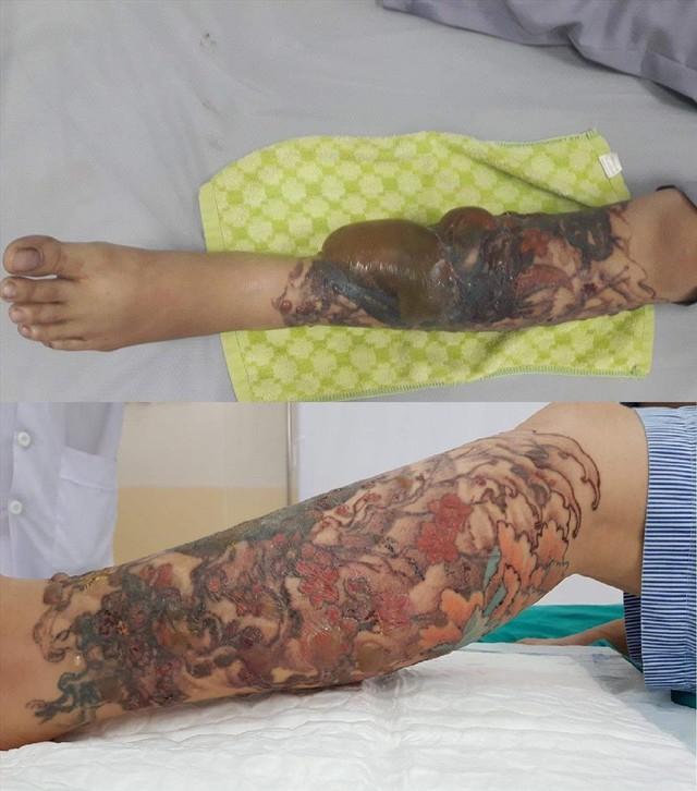 Bệnh nhân bị bỏng nặng sau khi xóa hình xăm. Ảnh: TL