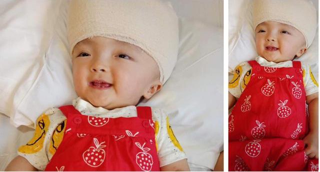 Những lúc tỉnh, bé Hoài Thương dù đau đớn nhưng luôn mỉm cười