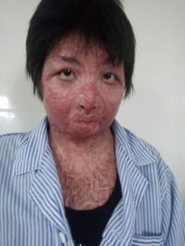Chị Trang sẽ được làm phẫu thuật da mặt trong thời gian tới (ảnh nhân vật cung cấp)