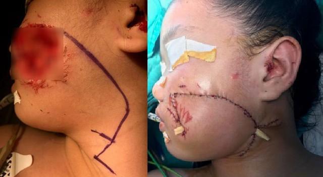 Bé gái bị chó nhà cắn vào mặt làm mất mảng thịt