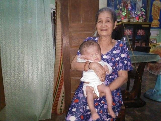 Bệnh tật khiến bé cơ thể bé Lâm Bảo Anh không phát triển.