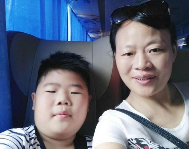 Xu đã sụt 10 kg kể từ khi biết mình mắc bệnh. Ảnh: Weibo.