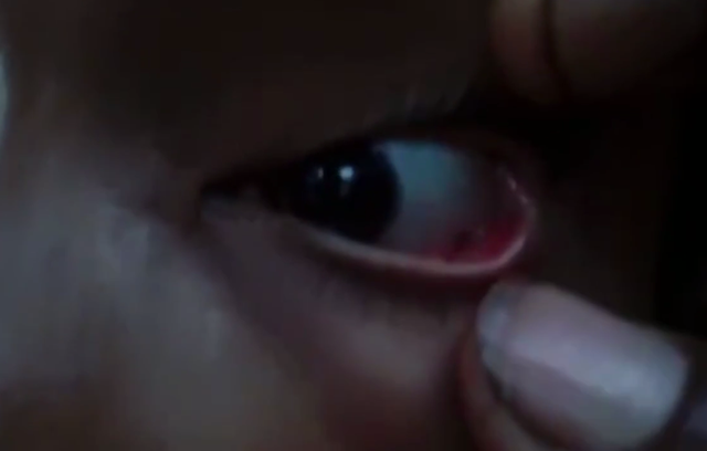 Con kiến trong mắt bé gái Ashwini (Ảnh: The Sun)