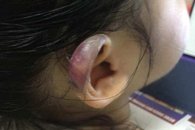Một bên tai của bé gái bị sưng phồng, biến dạng.