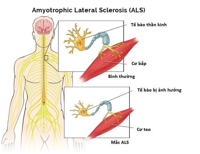 ALS khiến não không thể điều khiển cơ bắp. Ảnh: Guttmann.