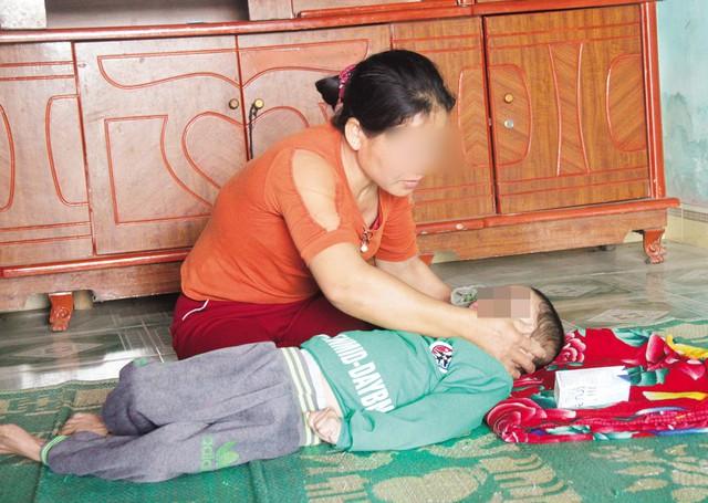 Chị Vi Thị Khang bên người con bị bệnh bại não.