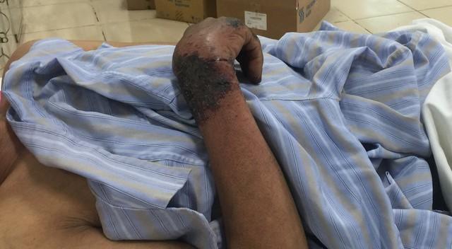 Rải rác toàn thân bệnh nhân B. nổi ban tím, đỏ, tập trung nhiều ở vùng chân, bàn tay, mặt. Thậm chí có chỗ còn nổi phồng, nứt nẻ.