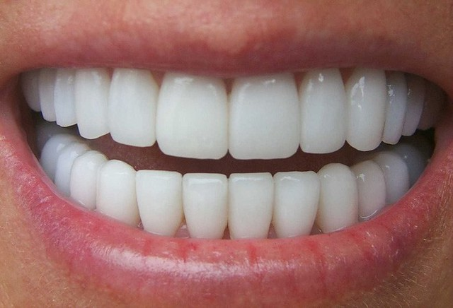 Để có hàm răng đẹp đôi khi phải đánh đổi
