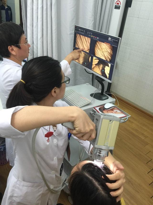 Soi da đầu cho bệnh nhân tại khoa Chẩn đoán hình ảnh, Bệnh viện Da liễu Trung ương. Ảnh: T.Nguyên