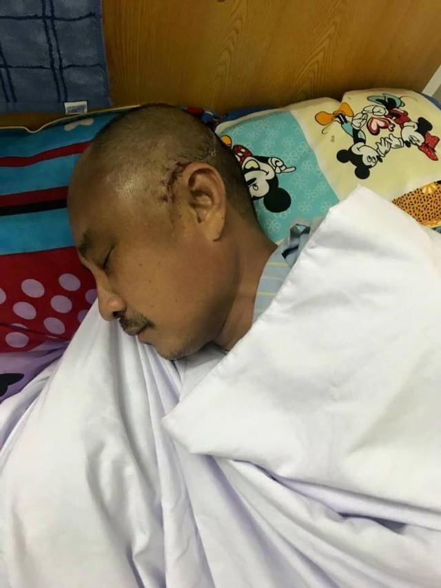 Nạn nhân hiện đang điều trị tại bệnh viện Đa khoa Hữu Nghị tỉnh Nghệ An trong tình trạng nguy kịch.