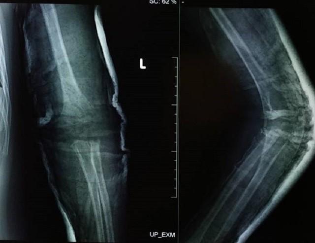Hình ảnh X-quang chụp khuỷu tay bị gãy chỏm quay ở bệnh nhi
