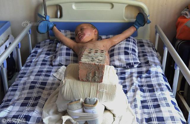 Hình ảnh bé Thừa Ân 5 tuổi nằm trong bệnh viện