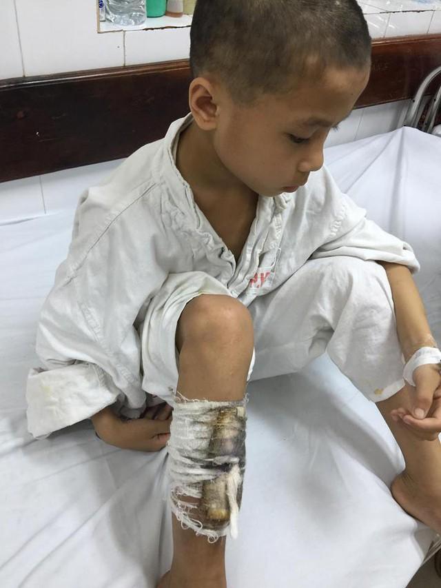 Nếu không có tiền phẫu thuật điều trị tiếp, Lìn có nguy cơ bị cụt chân