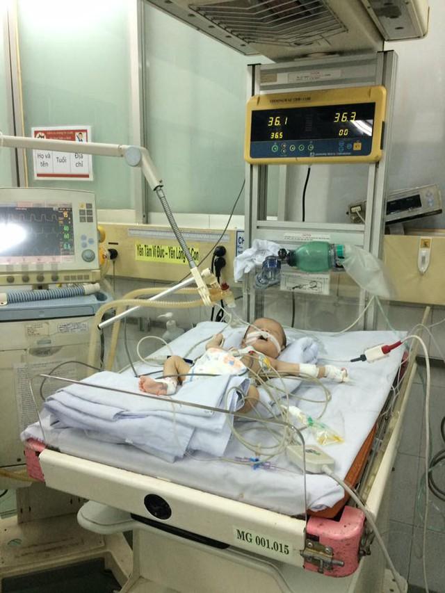 Xót xa bé sơ sinh không bú mẹ, chỉ sống bằng thuốc và dịch truyền