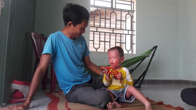 Người cha đau đớn chứng kiến cơ thể con bị bong tróc, ứa máu mỗi ngày