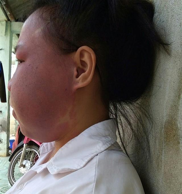 Từ năm 12 tuổi, em Cứ Thị Vang có khối u to trên mặt.