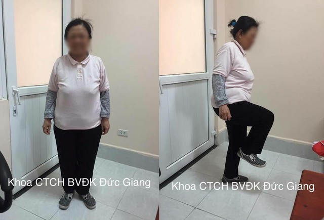 Sau 1 tháng phẫu thuật, bệnh nhân đã tự đi bộ được xa, bắt đầu tập đi nhanh và leo cầu thang.
