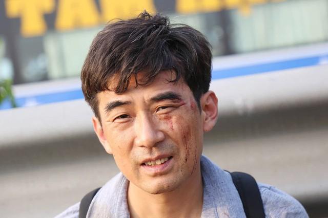 Một người trong đoàn bị xây xát. Nghe tiếng rầm, tôi mở mắt ra thì thấy bên ngoài khói mù trời, lúc xuống xe khói phả vào mặt rất khó thở, anh Dương, hành khách cho biết.