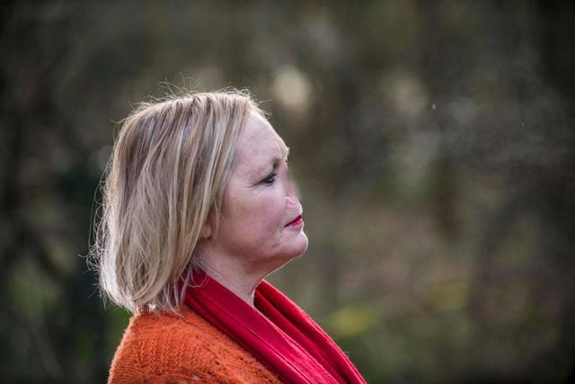 Bà mẹ 2 con 48 tuổi giờ đây có gương mặt khá giống với nhân vật Chúa Tể Voldermort.