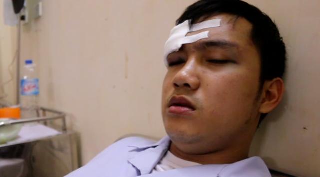 Thực tập sinh Trần Nhật Gíap đang phải theo dõi chấn thương sọ não, đang điều trị tại khoa Ngoại Thần kinh