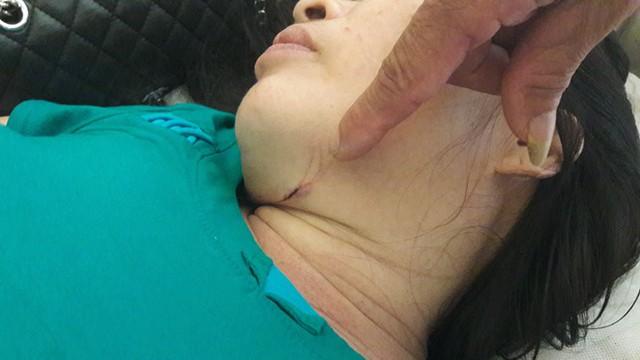 Vết thương ở cổ bà Thuận do tên cướp kề dao gây ra. Ảnh Phạm Đức