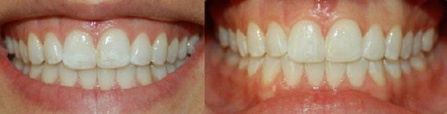 Các chuyên gia nha khoa khẳng định rằng, răng màu vàng nhạt mới là mẫu răng khỏe nhất. (Ảnh minh họa).