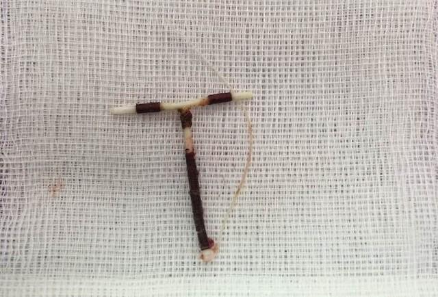 Vòng tránh thai bị lạc chỗ được lấy trong ổ bụng nữ bệnh nhân T. Ảnh: T.Thiêm