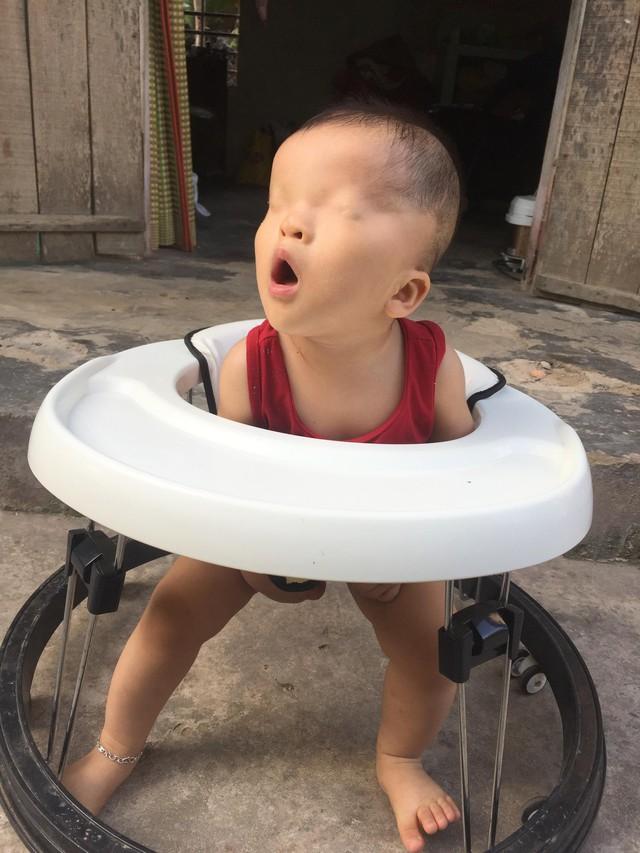 Bé Lê Phạm Hoàng Nam với đôi mắt dị tật dính mí mắt bẩm sinh.