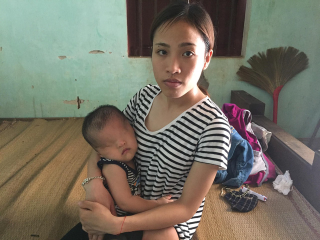 Chị Phạm Thị Kim Chi đau xót khi con không nhìn thấy ánh sáng.