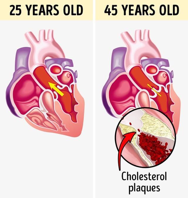 Hình ảnh thể hiện sức khỏe tim mạch ở tuổi 25 và tuổi 45, các mạch máu bị tắc nghẽn.