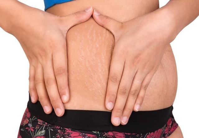 Rạn da là tình trạng nhiều phụ nữ gặp phải sau khi sinh con.