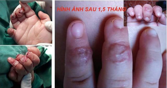 Cách cấp cứu khi bị đứt lìa chân, tay