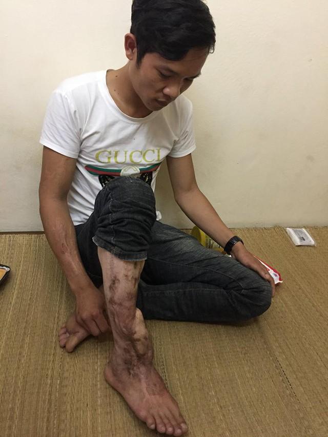 Sau tai nạn giao thông, anh Thơ bị di chứng nặng nề.